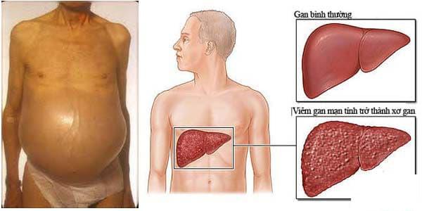 triệu chứng bệnh gan