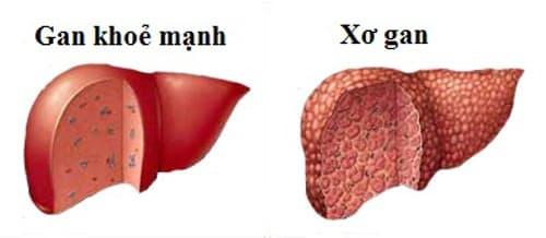 hội chứng suy tế bào gan