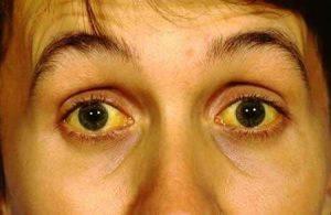 vảng mắt