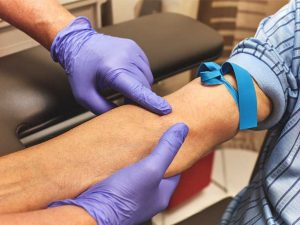 lấy máu xét nghiệm gan