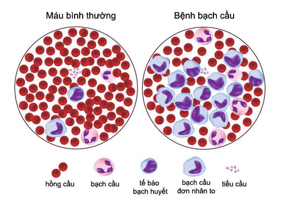 bệnh bạch cầu