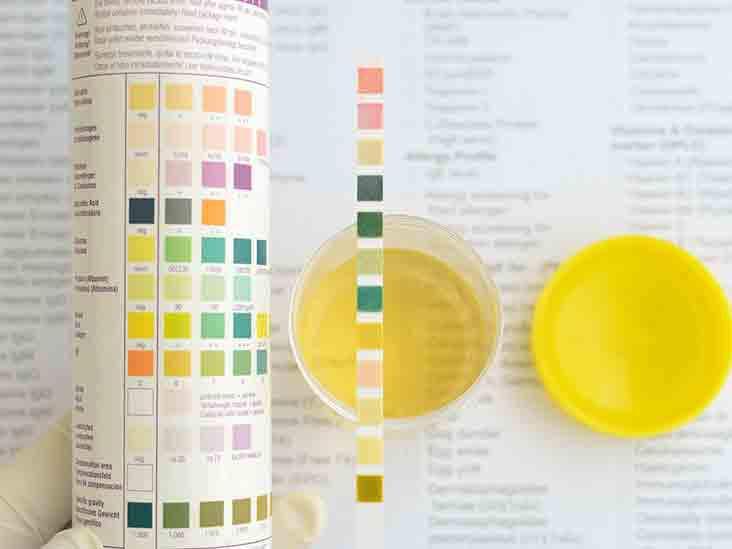 các yếu tố xét nghiệm nước tiểu