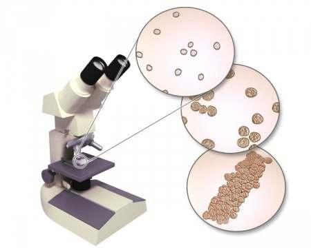 Xét nghiệm vi thể nước tiểu