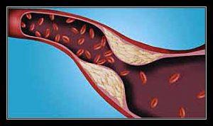 tăng lipid huyết