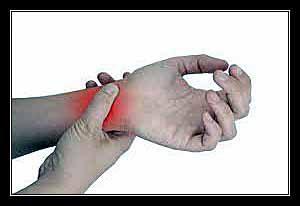 mất mạch cổ tay
