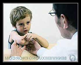 thấp đa khớp ở trẻ