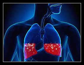 tim phổi cấp