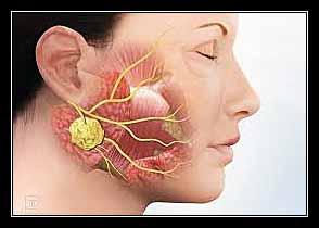 tuyến mang tai