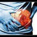 chảy máu ở người bệnh xơ gan