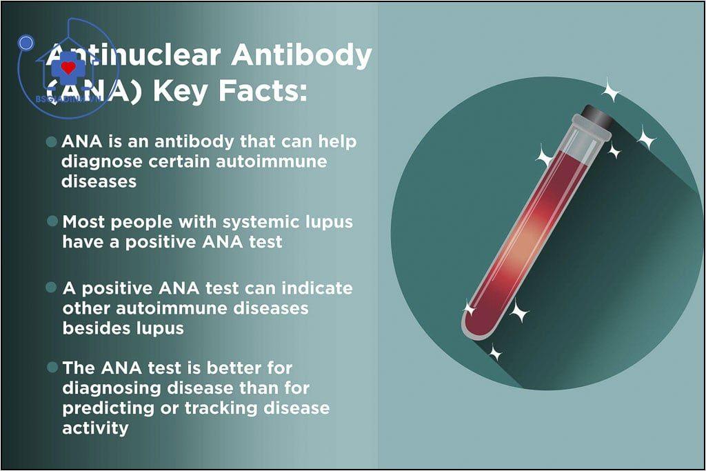 Kháng thể kháng nhân (ANA)