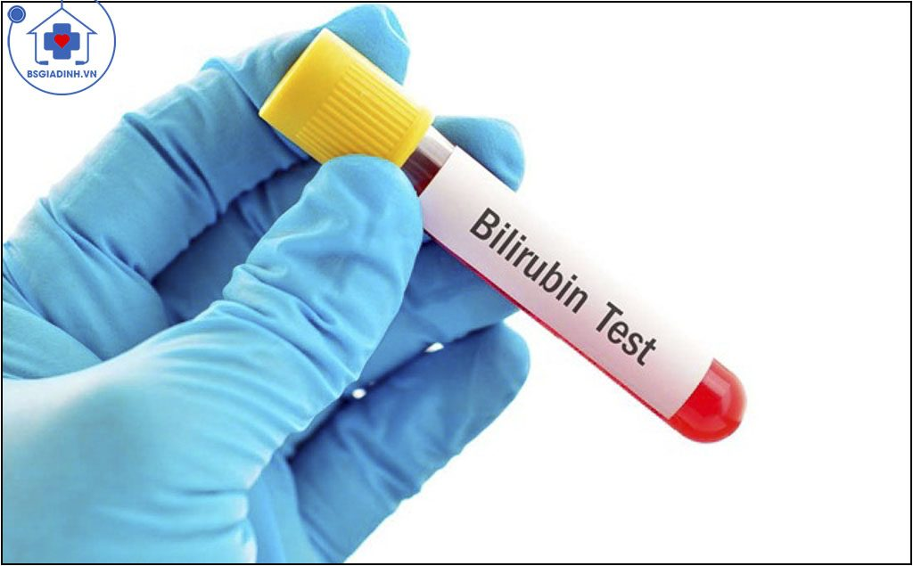xét nghiệm Bilirubin