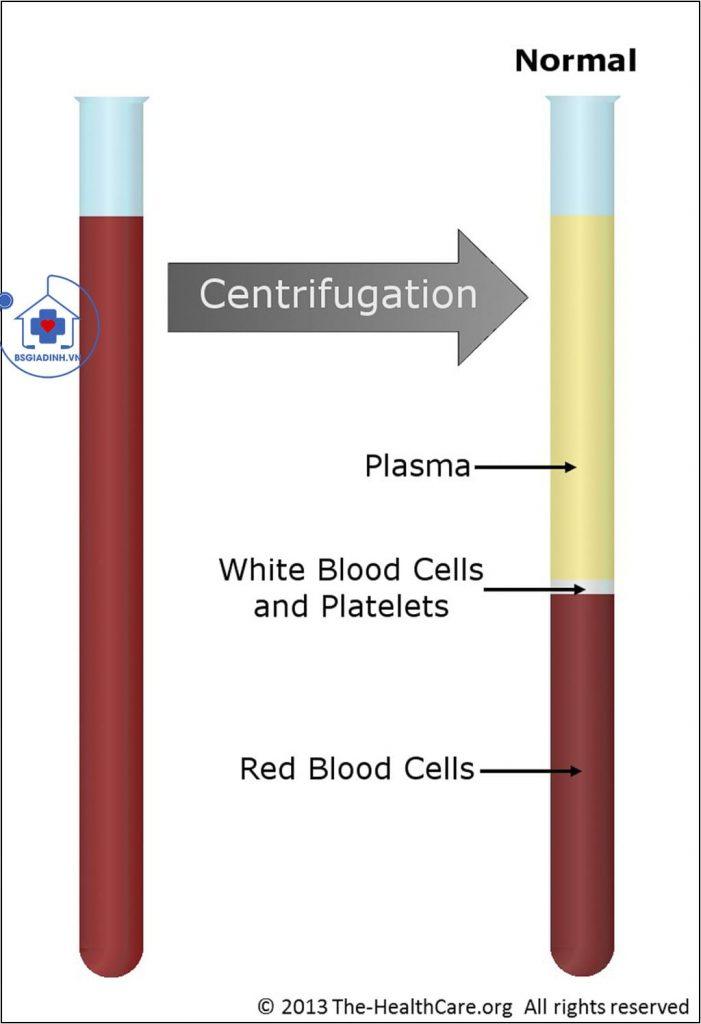 dung tích hồng cầu