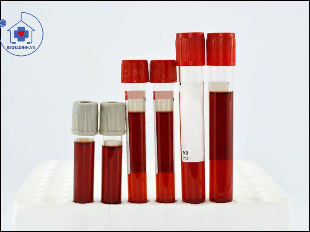 xét nghiệm rbc