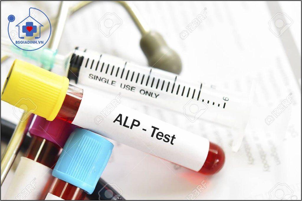 xét nghiệm ALP