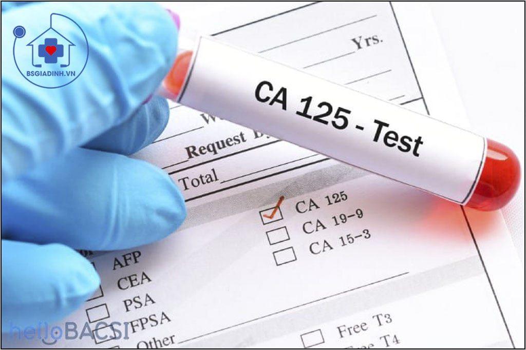 xét nghiệm CA 125