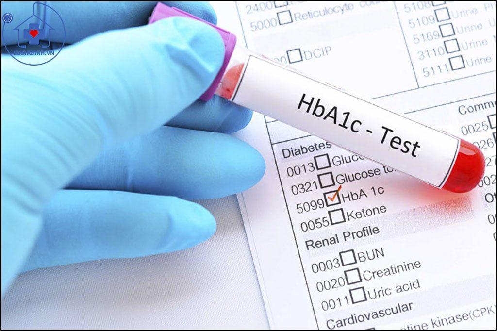 xét nghiệm HbA1C