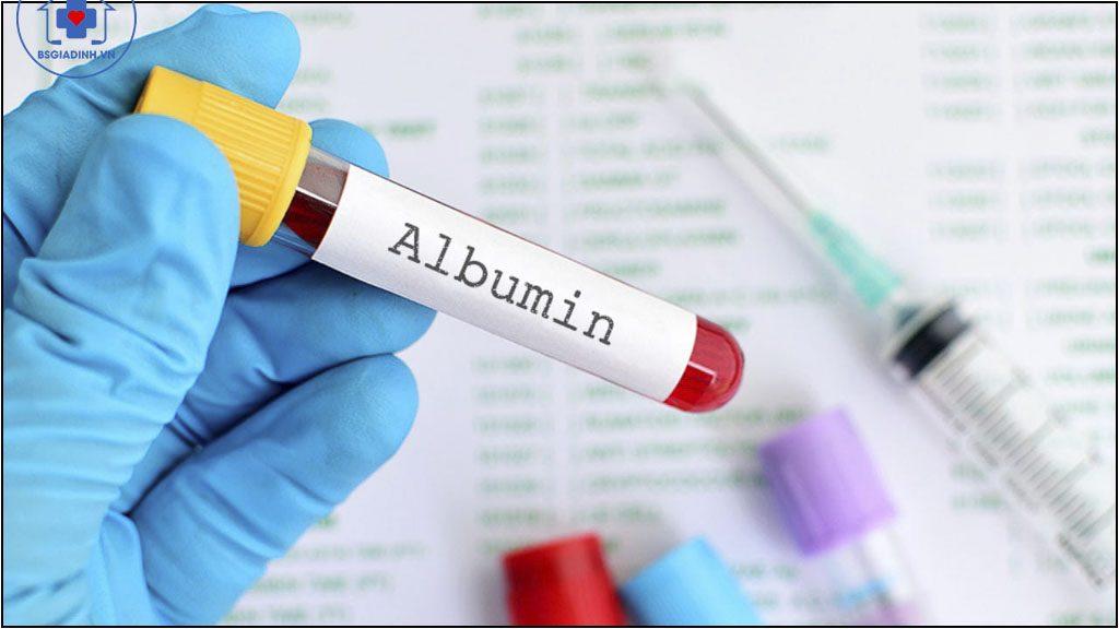 xét nghiệm albumin