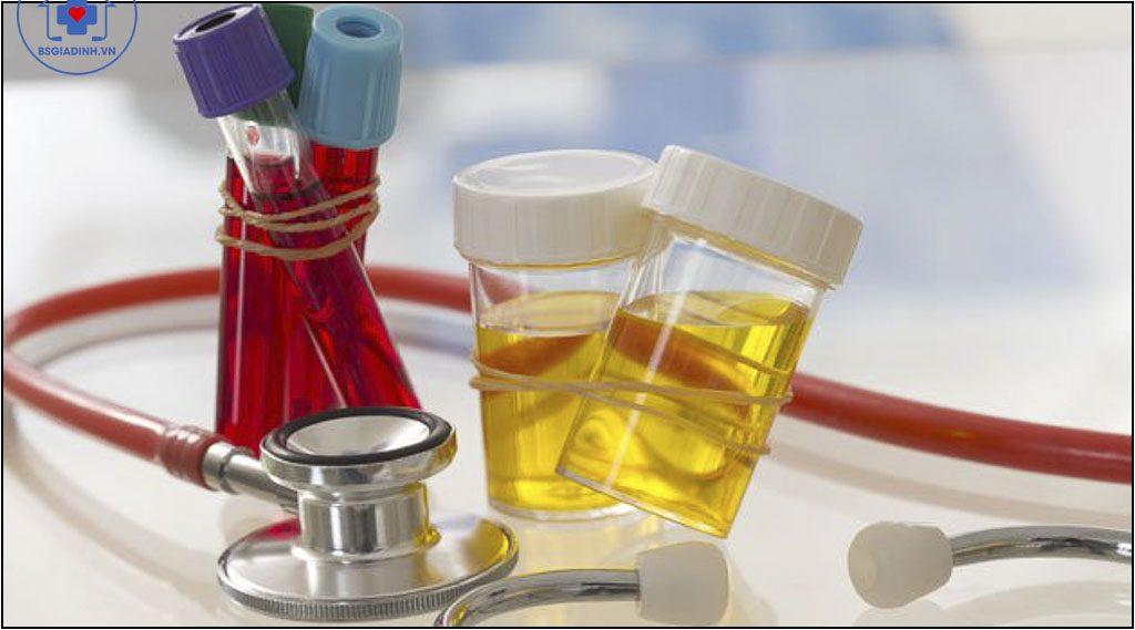 xét nghiệm glucose niệu