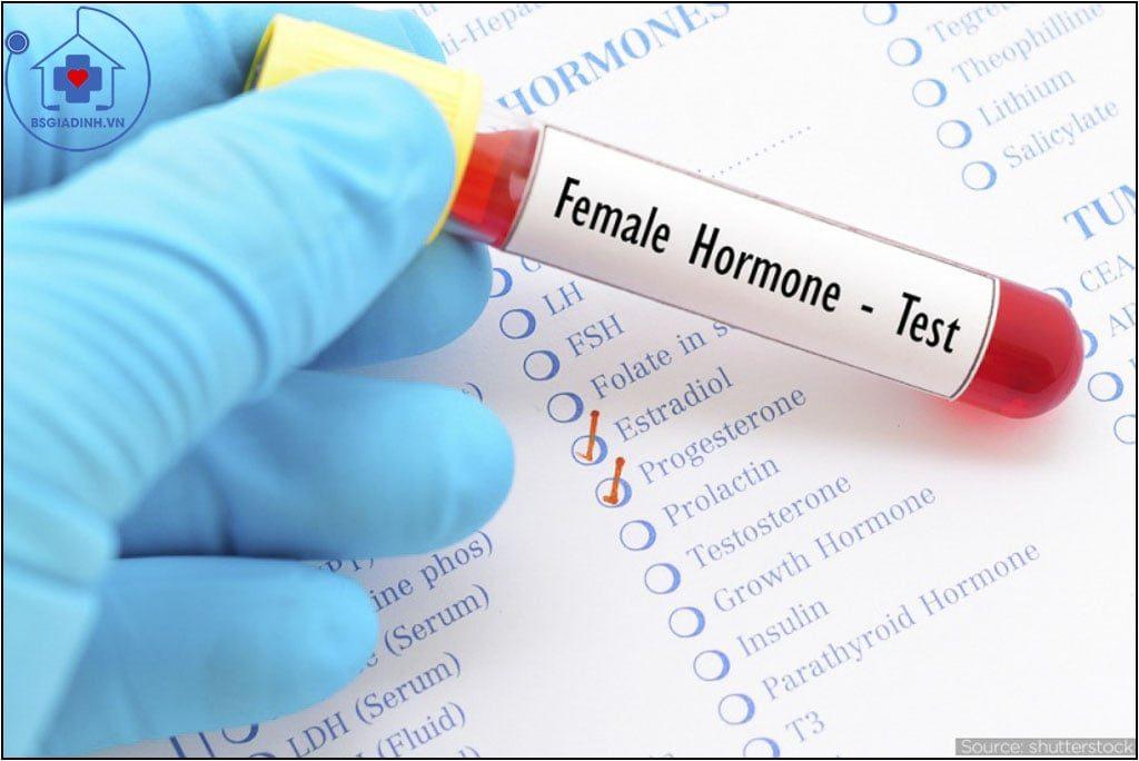 xét nghiệm LH
