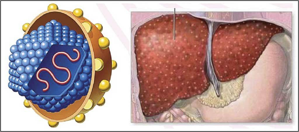 xét nghiệm viêm gan siêu vi