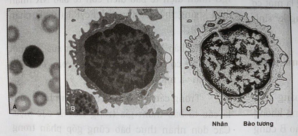 hình ảnh tế bào lympho