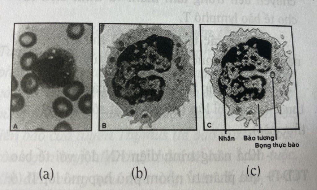 Hình ảnh đơn nhân thực bào